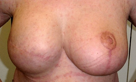 breast_reconstruction_after