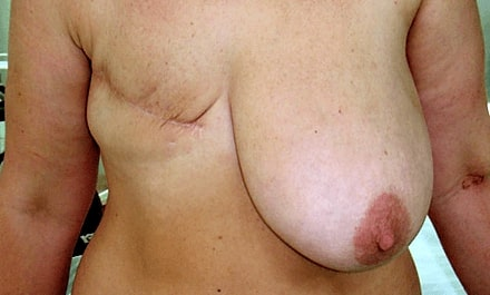 breast_reconstruction_before